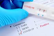 PT MSM Serahkan Bantuan Rapid Test ke Pemkot Bitung