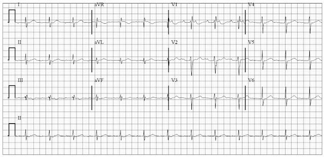 ECG of atrial tachycardia