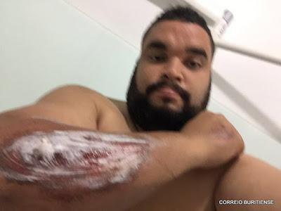 PREFEITO DE BURITI-MA SOFRE ACIDENTE DE MOTO EM SÃO LUÍS-MA