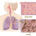 Detailed explanation on Chronic Obstructive Pulmonary Disease (COPD)