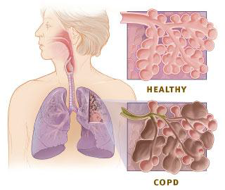 Chronic Obstructive Pulmonary Disease (COPD) is a preventable and treatable lung disease
