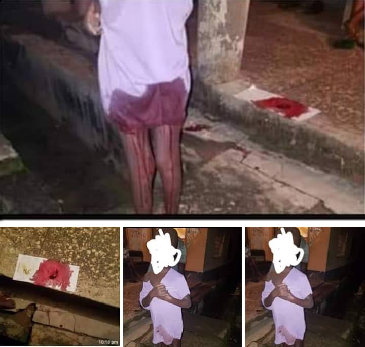 Shocking Photos of 7-Years-Old-Girl Rape Victim