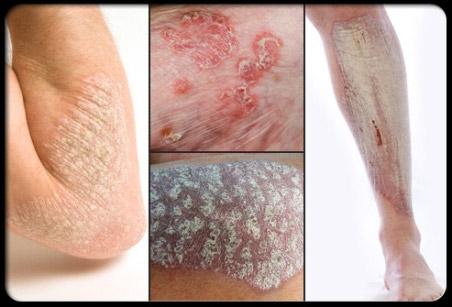 psoriasis stress rash