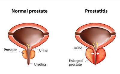 reduced urine flow treatment in chennai