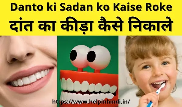 Dant ka kida marne ki dawa - दांत का कीड़ा कैसे निकाले