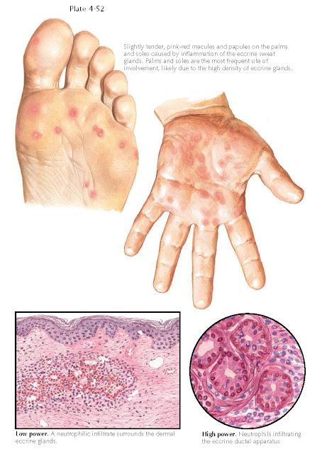 NEUTROPHILIC ECCRINE HIDRADENITIS