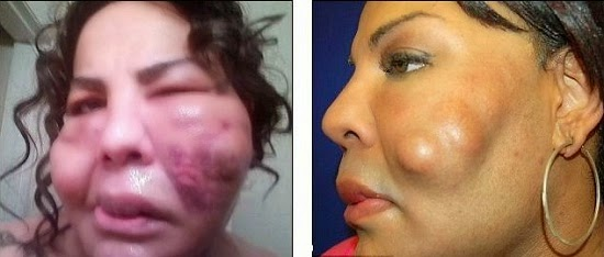 Photos Transgender Shows Off Her New Face After Surgery -2444