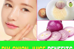 Onion Juice Benefits For Skin & Hair