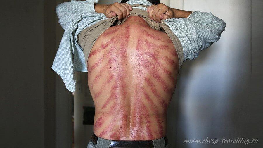 Последствия массажа