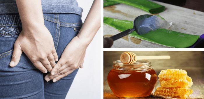 remedios para aliviar las hemorroides