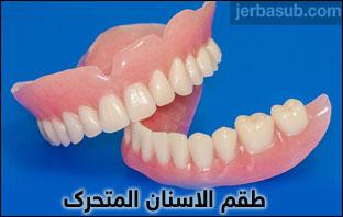سعر طقم الاسنان المتحرك في مصر