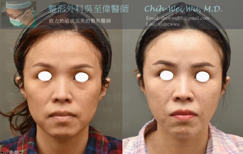 2020年7月最新電波拉皮案例正面照,此案例接受鳳凰電波拉皮合併全臉補脂,電波拉皮對於輪廓線改善的效果非常顯著,同時補脂則避免了脂肪流失的風險。