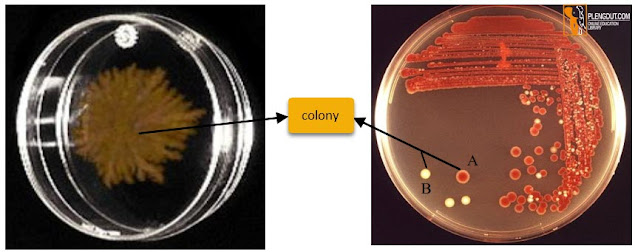Picture: Colonies of microorganisms on a Petri dish medium. Note that there are two kinds of colonies which show two different types of bacteria and one fungus colony.