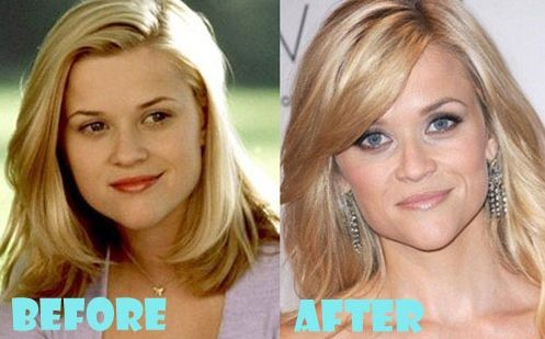 reese witherspoon chin nose face botox plastic surgery