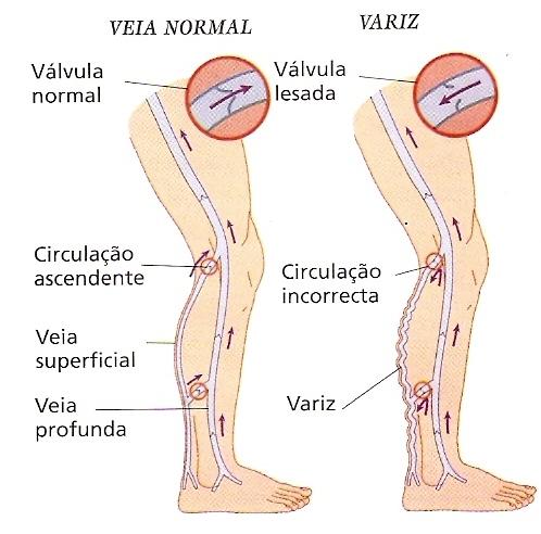 Nas e válvulas artérias veias