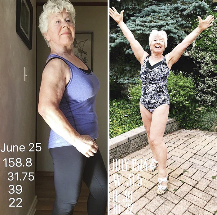 Before And After Pics of 73-Year-Old Mom who Lose 50+ Pounds