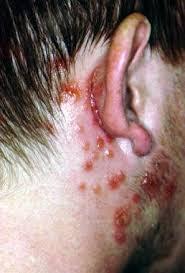 Pengobatan Herpes Menggunakan Obat Herbal