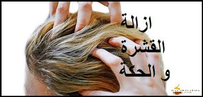 وصفة ازالة القشرة و الحكة في الشعر