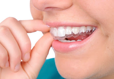 best dental braces in bangalore