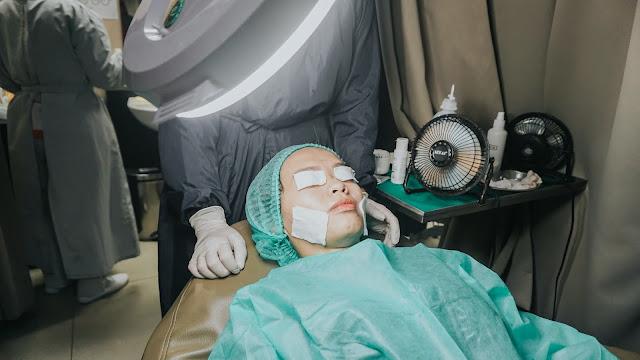 Pengalaman Treatment IPL di Erha Skin untuk Mengatasi Jerawat Aktif