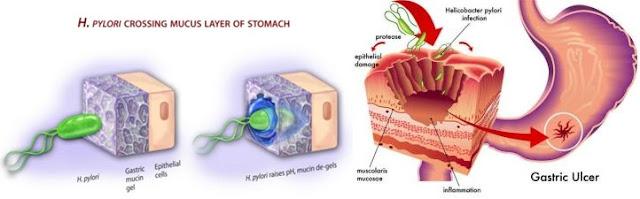 Obat Untuk Sembuhkan Infeksi Lambung Secara Efektif Dan Cepat Aman Dikonsumsi Tanpa Efek Samping