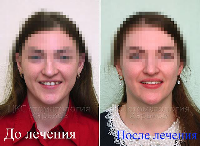 Улыбка пациента до и после ортодонтического  лечения
