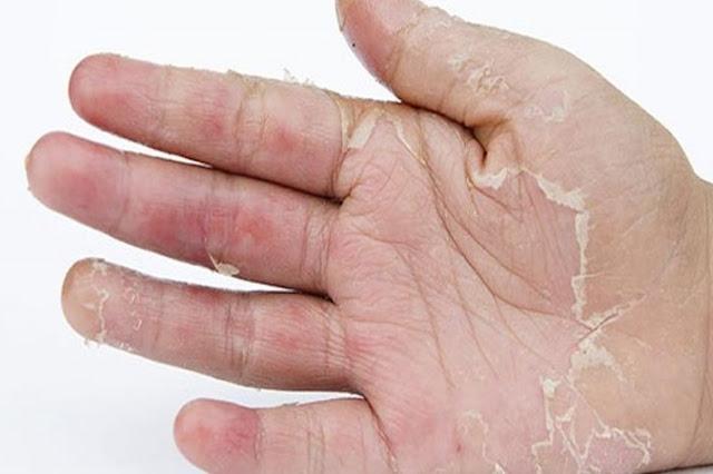 Hand Skin Peeling