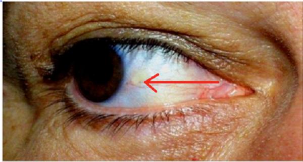 Mare grijă dacă observi asta la unul din ochi. Poate fi semn că ești pe punctul de a suferi un accident vascular cerebral!