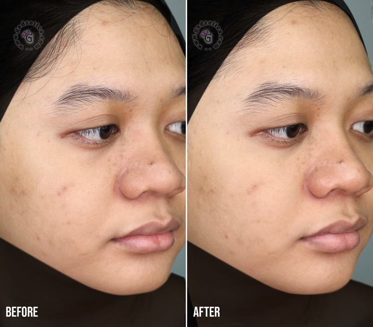 Review Facial Erha