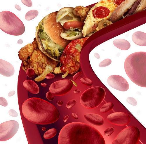 colesterol, dieta rica en grasas y salud cardiovascular