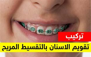 تقويم اسنان بالتقسيط وبدون دفعة اولى بالرياض