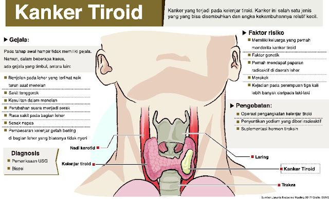Penyakit Tiroid disertai Penyebaran Cancer dibeberapa tempat