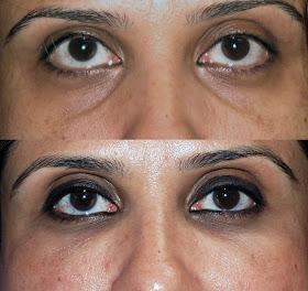 Sunken Eyes – Causes And Remedies ~ Mzizi Mkavu