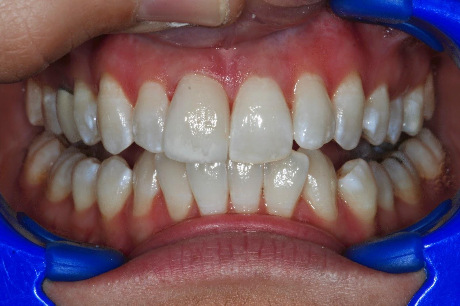 broken tooth porcelain veneer