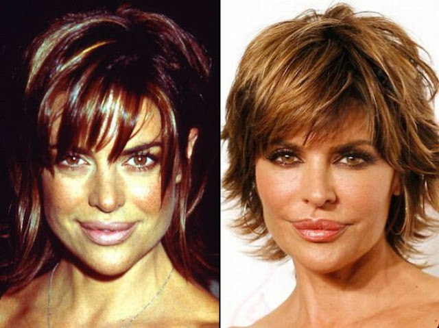 Lisa Rinna Antes y Despues