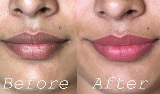 Tips Cara mencerahkan bibir hitam menjadi merah muda alami