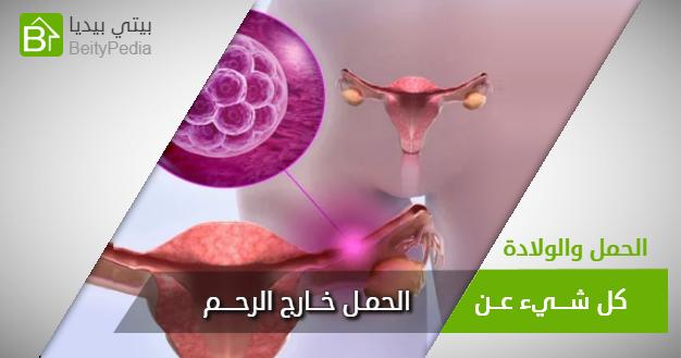 الحمل خارج الرحم