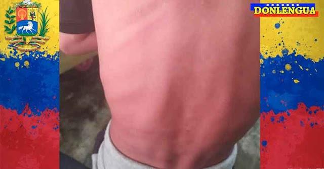 Detenida en Carabobo por darle con un palo de escoba a su hijo tremendo de 5 años