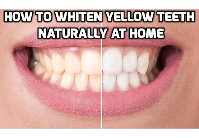 Whiter teeth (like thick, shiny hair) are something that many people in our cosmetically driven world desire today. Here are 3 teeth whitening tips you can use to whiten your yellow teeth naturally at home.