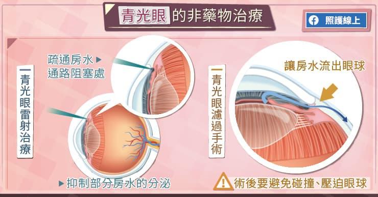青光眼的非藥物治療