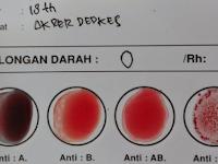 Golongan Darah O Wajib Tahu! Cuma Golongan Darah O Yang Punya Sifat Khusus 'Istimewa' Seperti Ini