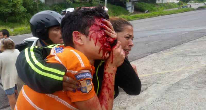Venezuelan Boy shot in the face by police loses both eyes