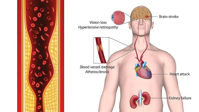 10 Causes of Hypertension Never to Ignore!
