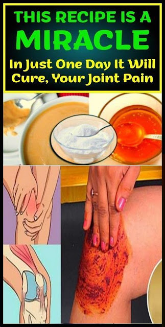 This Recipe Is A Miracle! In Just One Day It Will Cure Your Joint Pain