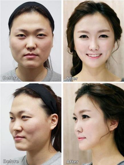 Inilah Wajah Asli Orang Korea Tanpa Operasi Plastik