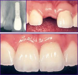 harga gigi palsu depan