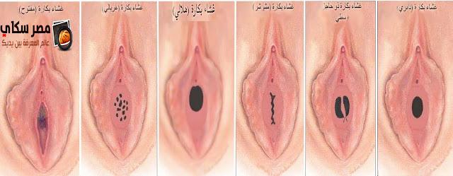 الأعضاء التناسلية للمرأة وكيفية العناية بها Female genital