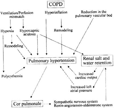 Pathophysiology diagram pulmonary heart disease kor pulmonal cor pulmonale patofisiologi