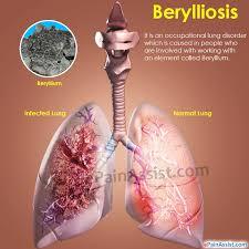 enfermedad de berilio y diabetes