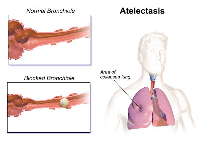 फेंफड़ों का न फूल पाना [ एटैलैक्टेसिस - Atclectasis ] किस प्रकार की समस्या है ? क्या - क्या है इसके प्रमुख लक्षण ? कैसे उपचार किया जा सकता है ? Not getting the flowers of the lungs [Alettlectasis] What kind of problem? What - is its main symptom? How can the treatment be done?